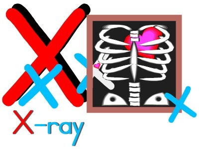 picture about Printable X Rays titled Alphabet Letter X X -Ray Concept Preschool Lesson Method
